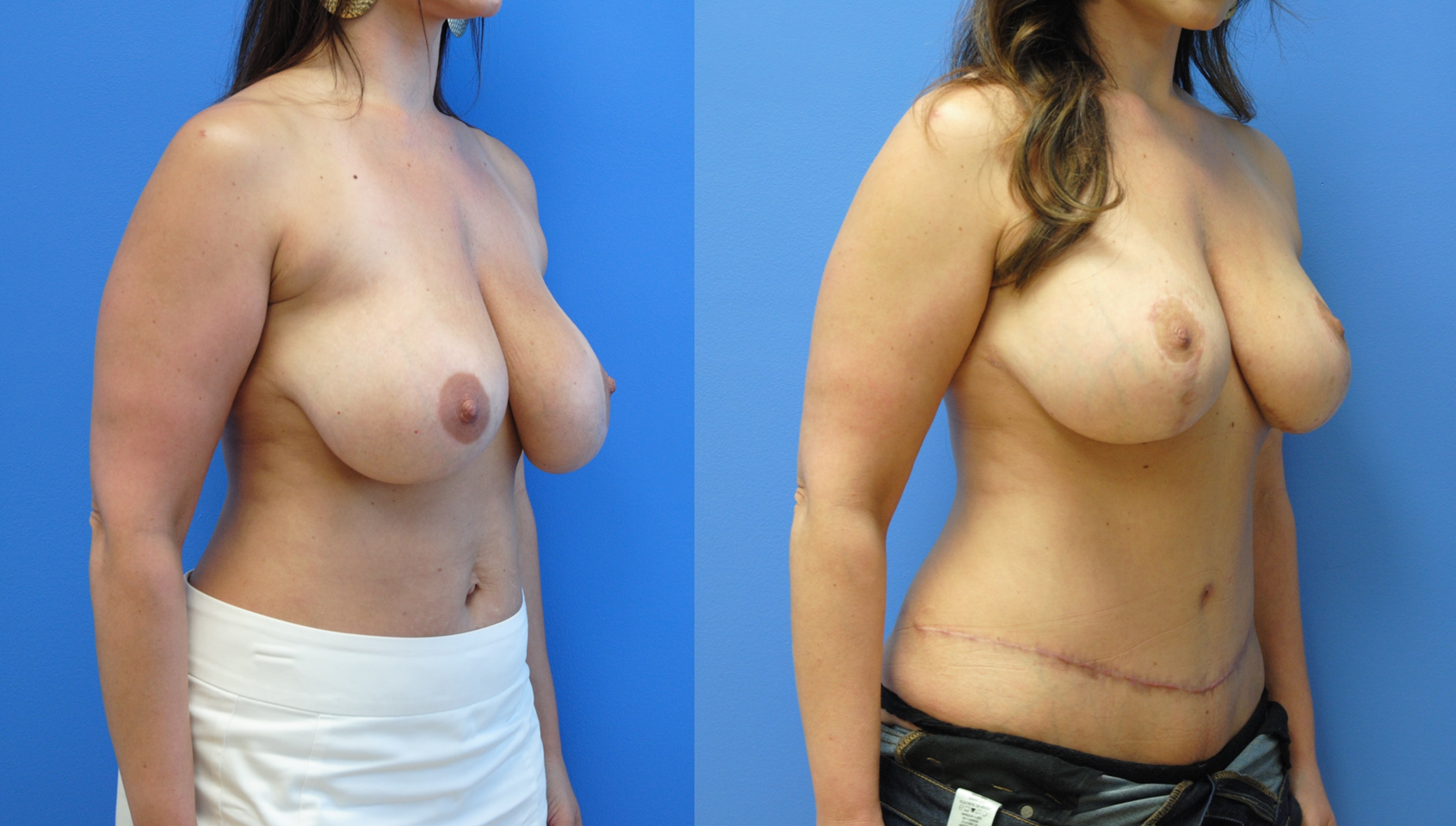 Abdominoplasty-Mommy-Makeover-Newport-Beach-Tummy-Tuck-Brian-Dickinson-M.D.