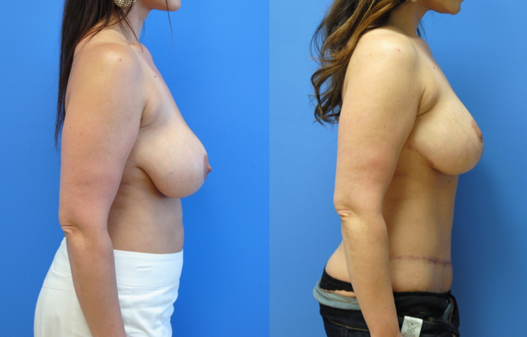 Abdominoplasty-Newport-Beach-Brian-Dickinson-M.D
