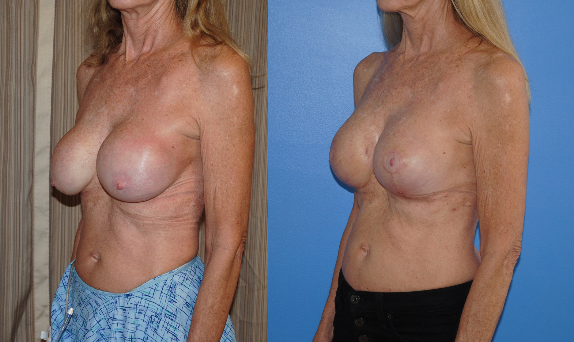 Breast Lift Augmentation Mastopexy