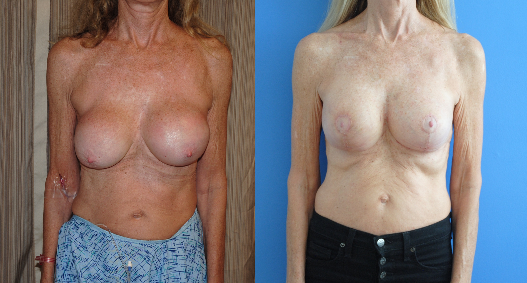 Breast Lift with Removal and Replacement of Breast Implants