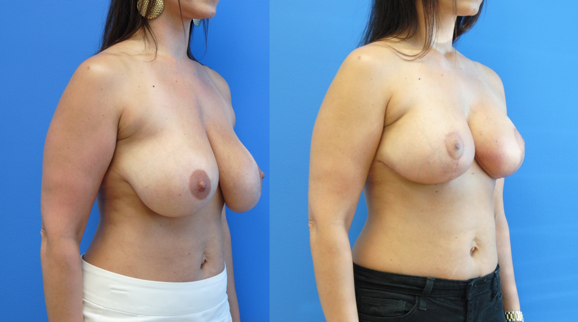Breast-Lift-with-Breast-Implant-Reduction