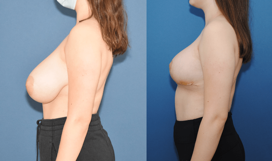 Breast-Reduction-Before-and-After-Side-Profile-Brian-Dickinson-M.D.