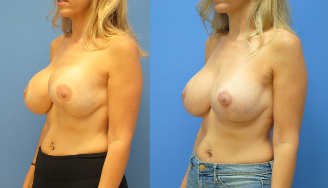 Breast-Reduction-Breast-Lift-Capsular-Contracture