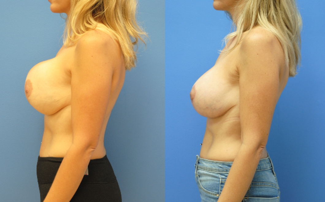 Breast-Reduction-Breast-Lift-Newport-Beach