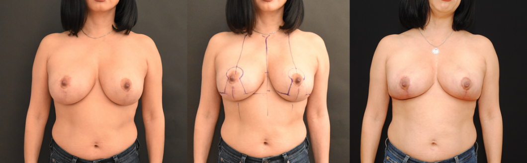 Breast-Reduction-Removal-of-Mammary-Prosthesis