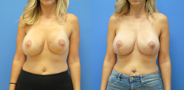 Breast-Redution-Breast-Lift-Orange-County