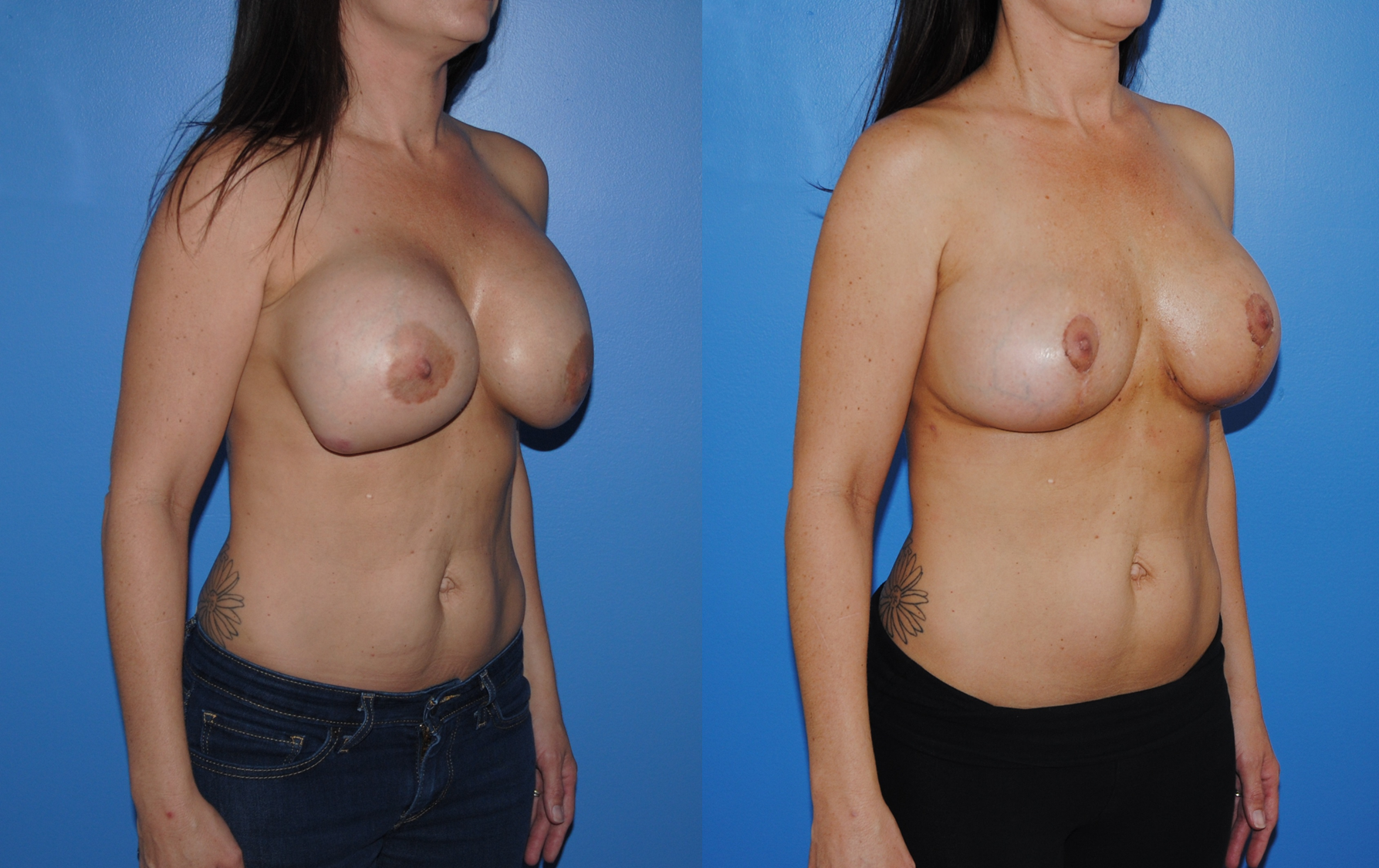 Mastopexy-Removal-Replacement-Saline