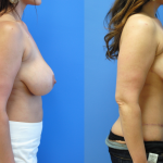 Abdominoplasty-Newport-Beach-Brian-Dickinson-M.D.-Mastopexy-Augmentation-Mommy-Makeover