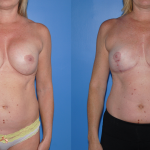 Downsizing Implants and Breast Lift