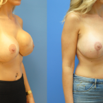 Breast-Reduction-Breast-Lift-Brian-Dickinson-M.D.