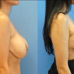 Mastopexy-Augmentation-Newport-Beach-Brian-Dickinson-M.D.-Silicone-Implants