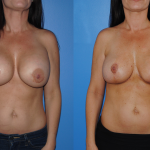 Removal-Replacement-Mastopexy