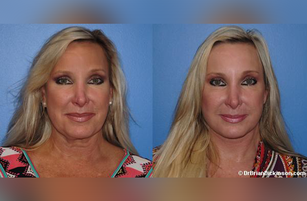 Facelift-Surgery-Orange-County