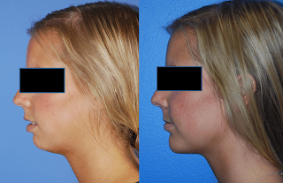 Repositioning-the-Platysma-Facelift-Surgery