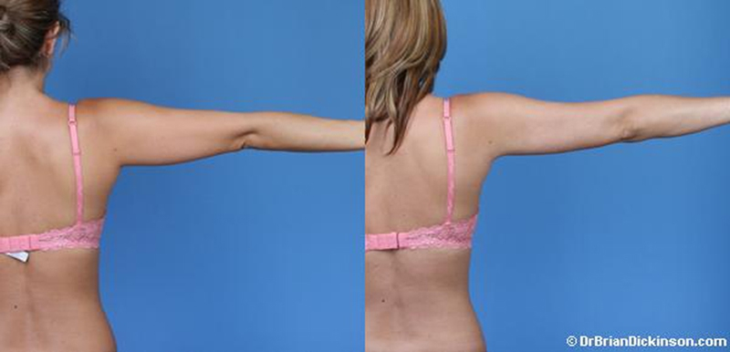 1_Liposuction-Arms