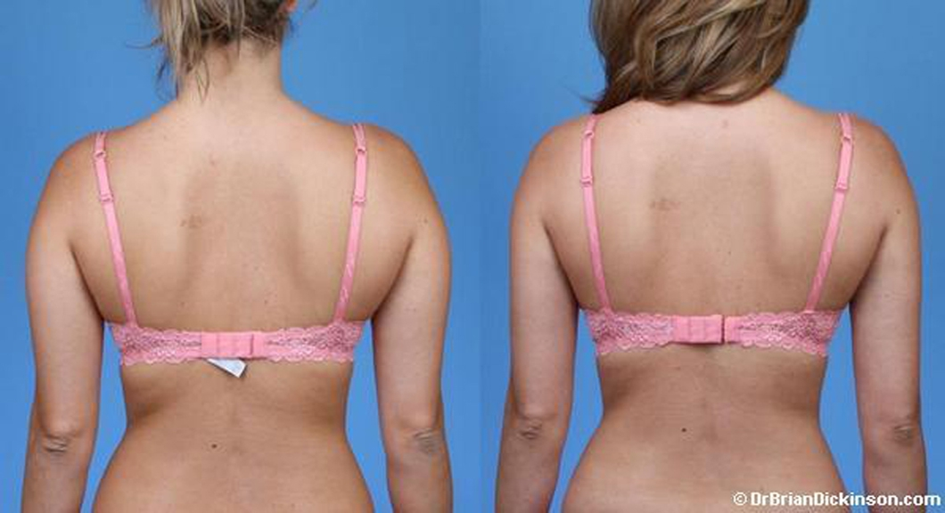 1_Liposuction-Back-Dickinson