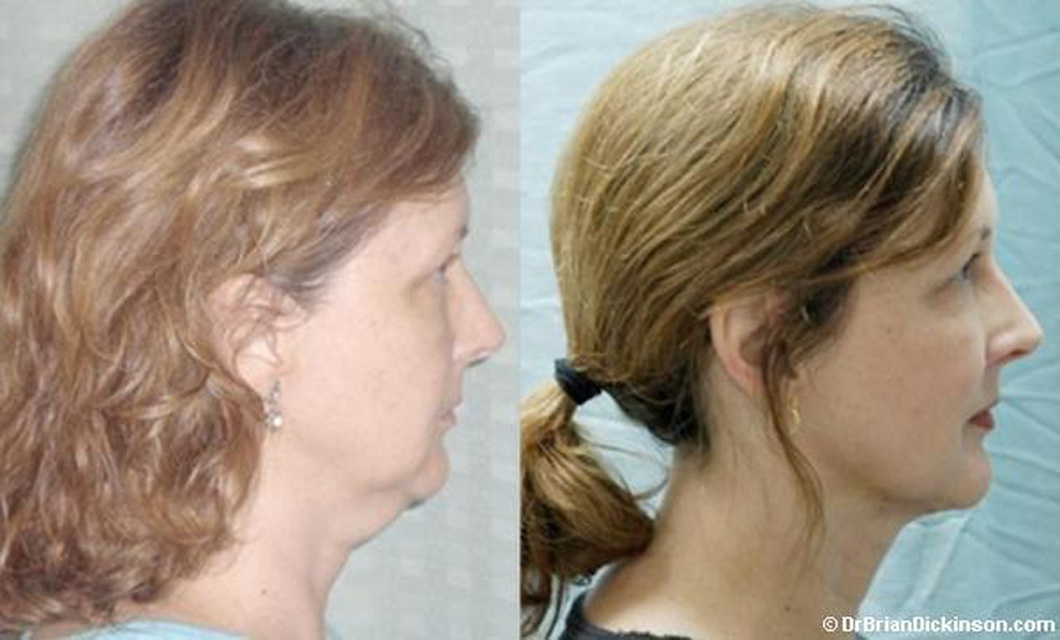 1_Liposuction-Neck-Facial-Rejuvenation-Dickinson