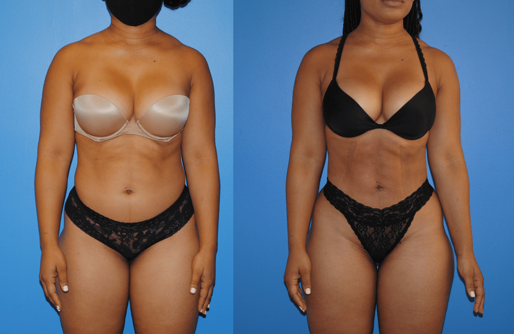 Liposuction-and-Gluteal-Fat-Transfer-Front-View