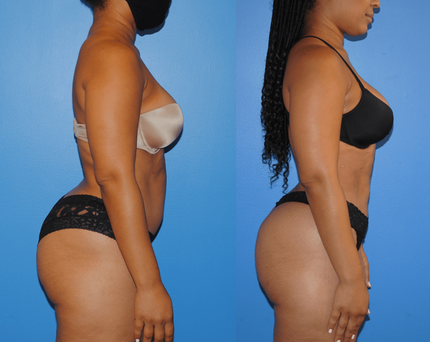 Liposuction-and-Gluteal-Fat-Transfer-Profile-View