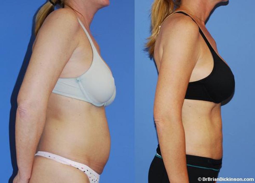 Liposuction_Newport_Beach