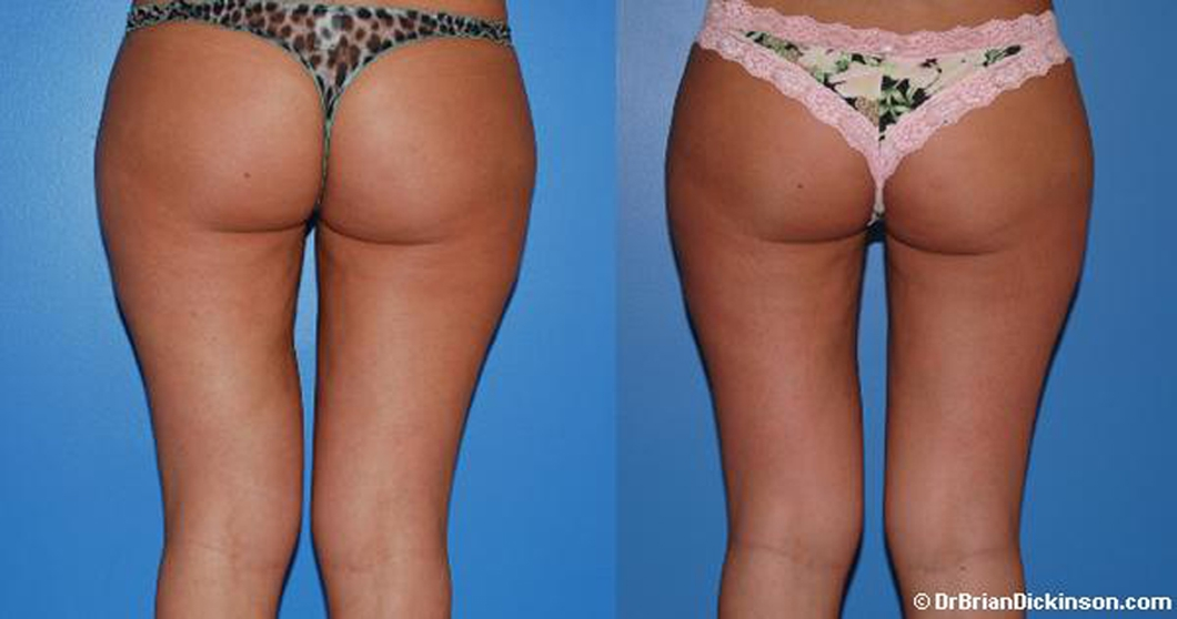 Liposuction_costs_newport_beach