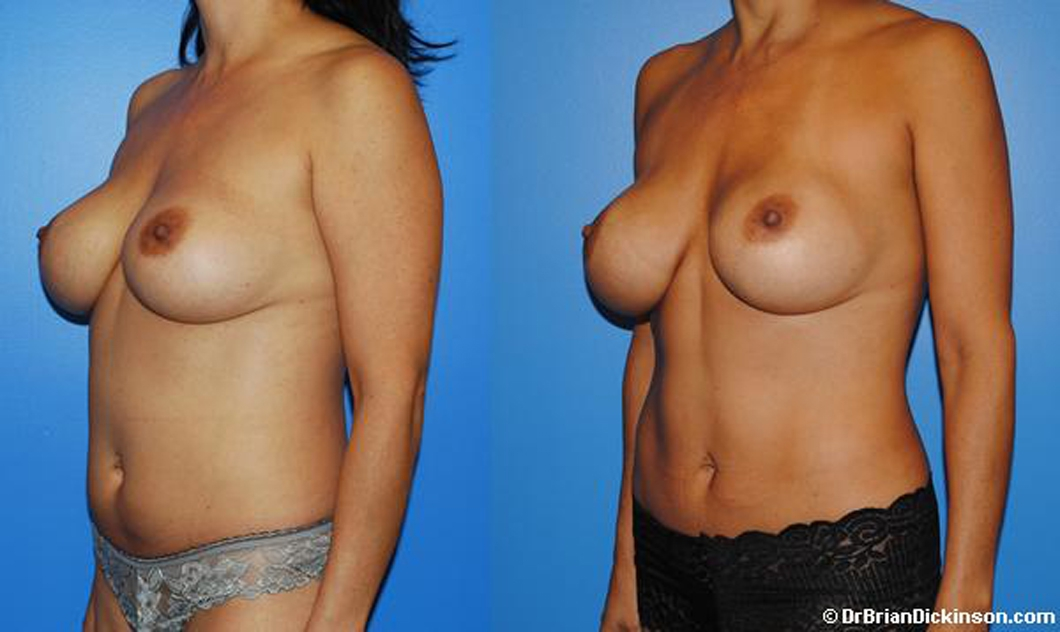 Liposuction_tummy_plastic_surgeon
