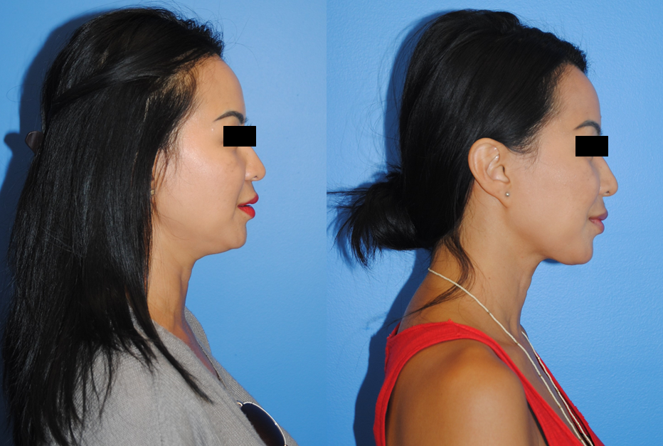 Neck-Liposction-Before-After