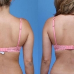 Liposuction-Back-Dickinson