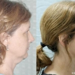 Liposuction-Neck-Facial-Rejuvenation-Dickinson