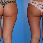 Liposuction_NB
