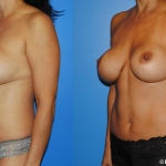 Mini-Tummy-Tick-Liposuction