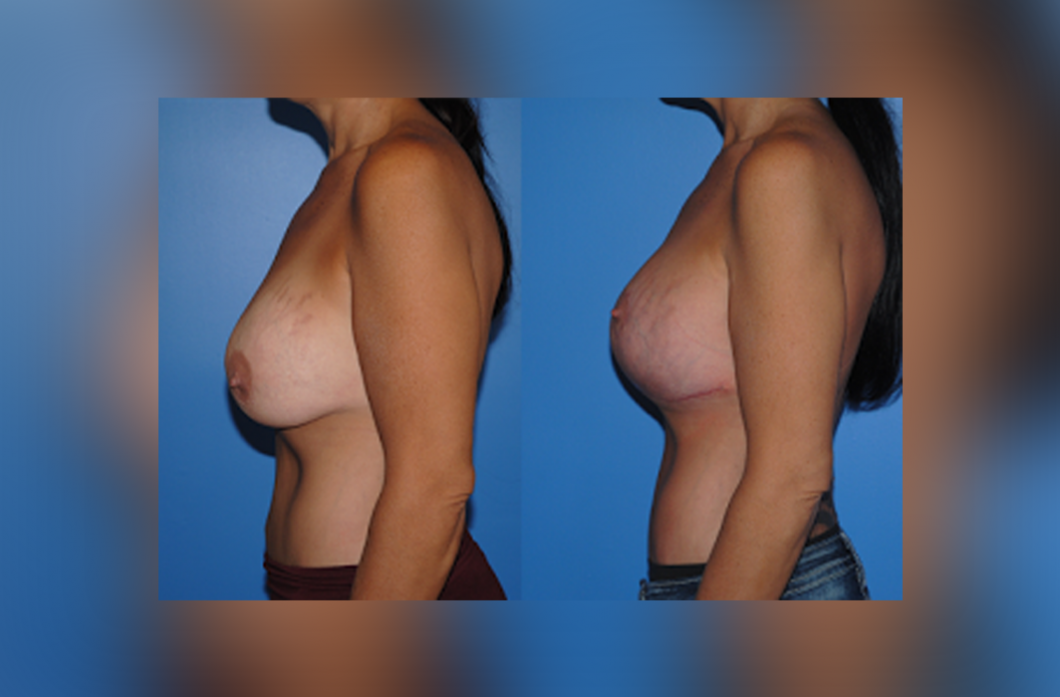 1_Mastopexy-Augmentation-Dickinson-Newport-Beach