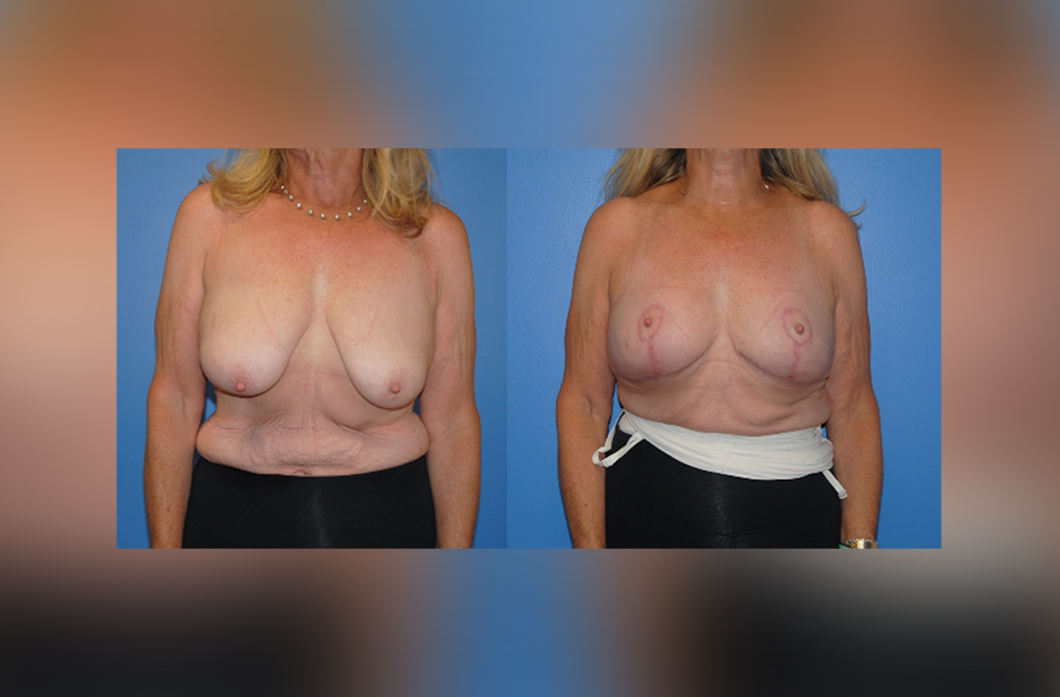 1_Mastopexy-Surgery-Newport-Beach