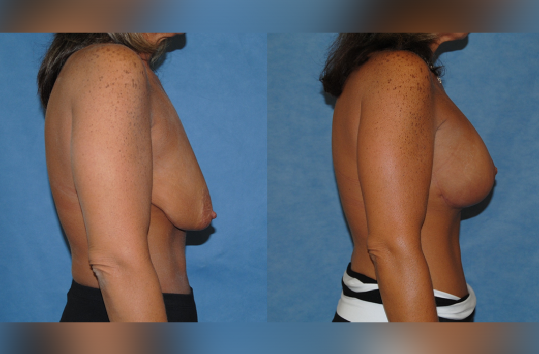1_Mastopexy_Augmentation_Newport-Beach