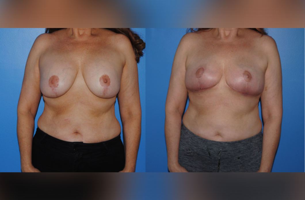 1_Mastopexy_with_Implants_Removal