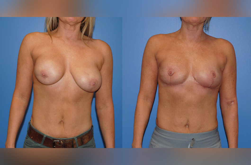 Breast_Reconstruction_Mastopexy_BD