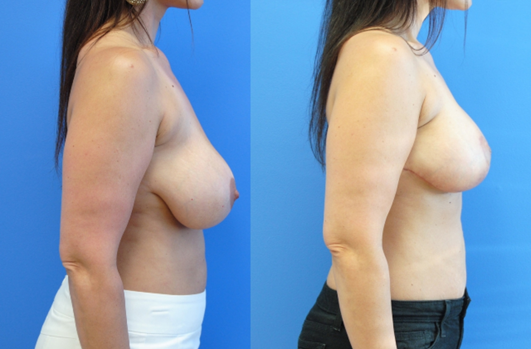 Mastopexy-Augmentation-Breast-Augmentation-Breast-Implants-Brian-Dickinson-M.D