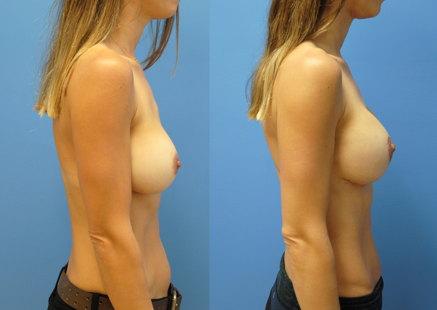 Mastopexy-Augmentation-Profile-Newport-Beach-Brian-Dickinson-M.D.