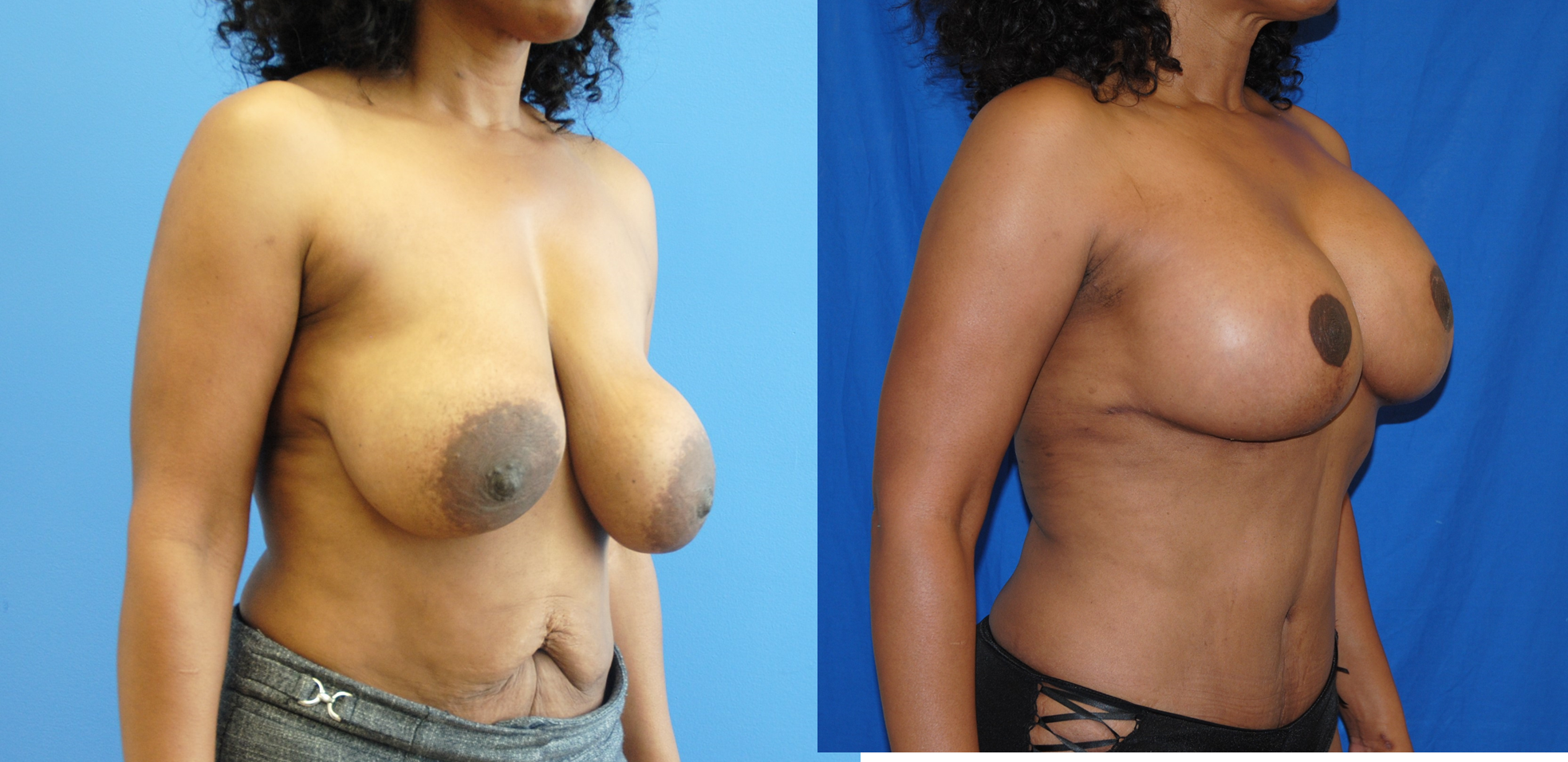 Mastopexy-Breast-Lift-Removal-and-Replacement-Newport-Beach-Brian-Dickinson-M.D
