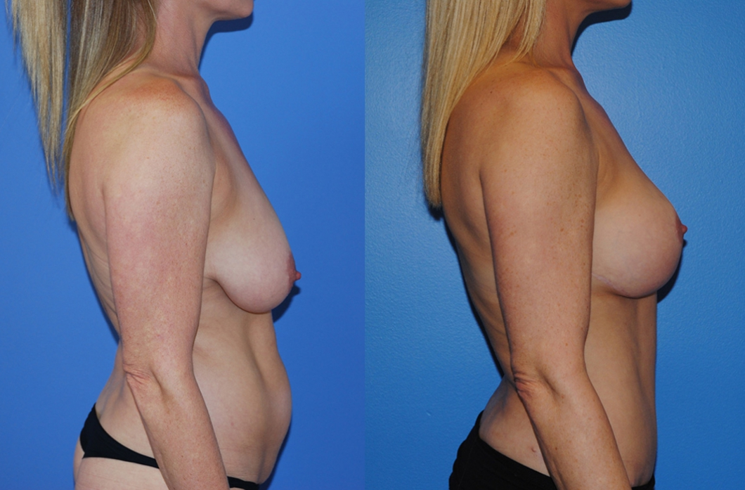 mastopexy-augmentation-newport-beach-2