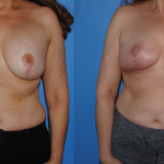 Mastopexy_with_Implants_Removal