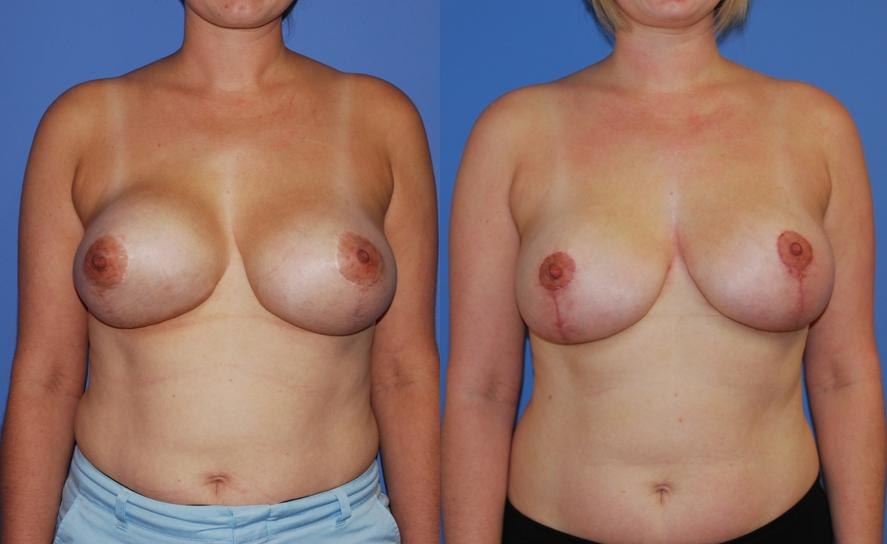 Mastopexy-Augmentation-Reduction-Capsular Contracture-Dickinson Blog 1