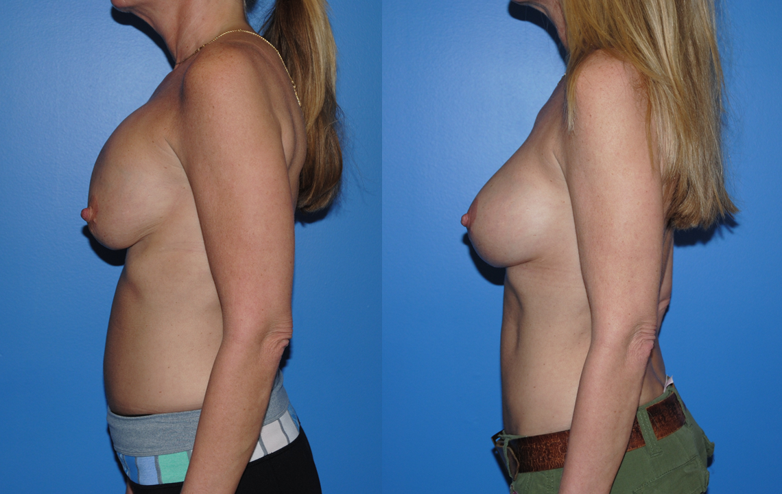 Newport Beach-Capsular Contracture-Beverly Hills
