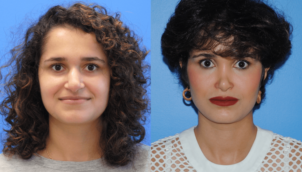 1_Rhinoplasty-Before-After