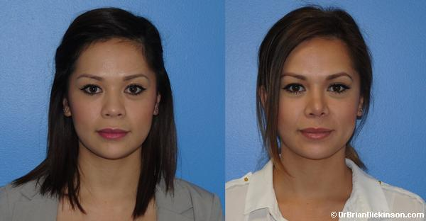 Asian Rhinoplasty for Dorsal Aesthetic Lines & Tip Definition