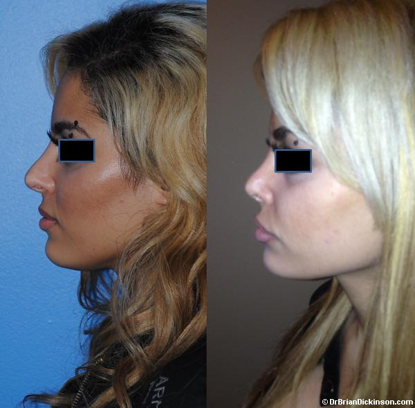 Middle Eastern Rhinoplasty