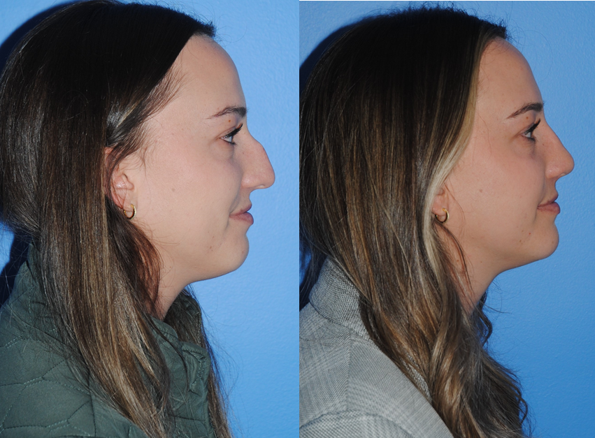 Maintenance-of-Dorsal-Hump-Post-Rhinoplasty
