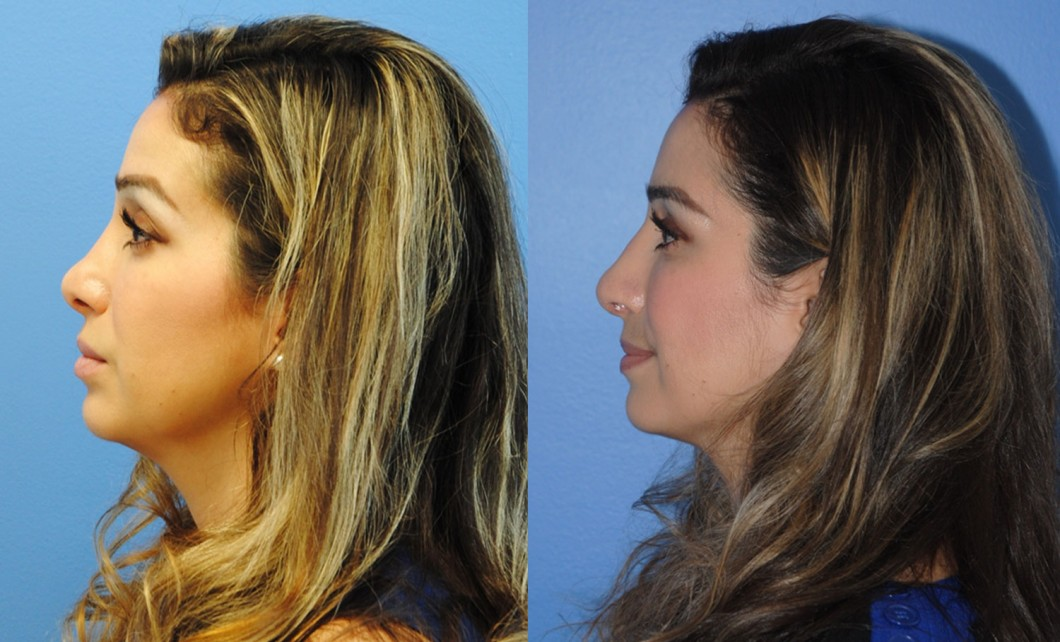 Revision-Rhinoplasty-newport-beach-rotate-nasal-tip-down