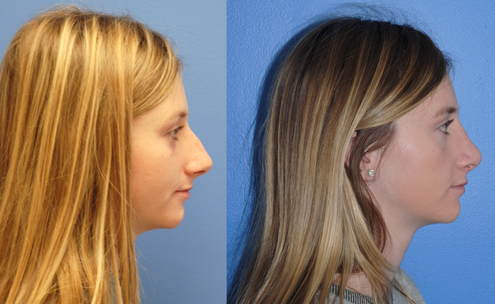 Rhinoplasty-Dorsal-Hump-Reduction-Natural-Results