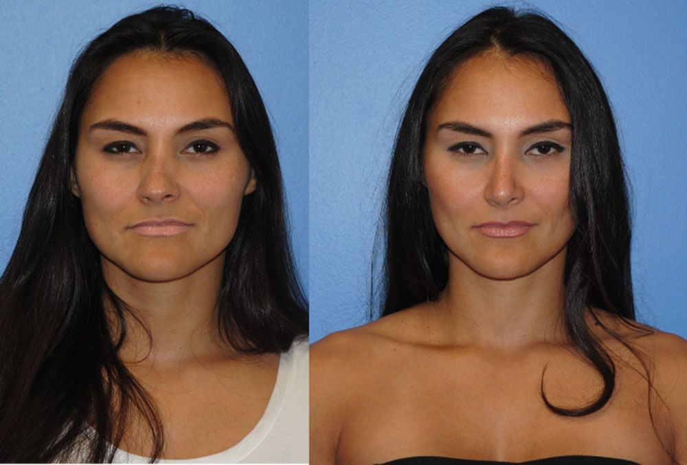 Rhinoplasty-Dr-Dickinson-Newport-Beach